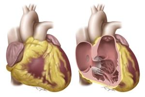 Heart-Cut-2